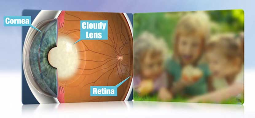 Cataract interfering with Vision