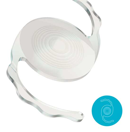 Trifocal-PiggyBack-Lens-IOL-Sulcoflex for Cataract Surgery
