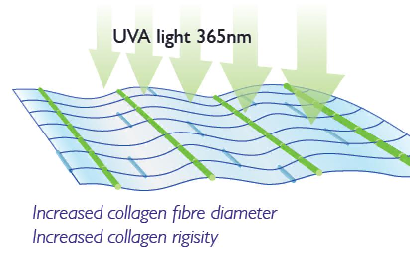 Collagen Crosslinking