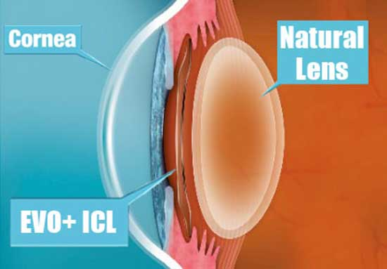 EVO Visian ICL implanted cross section position 2