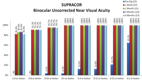 Supracor Near Results