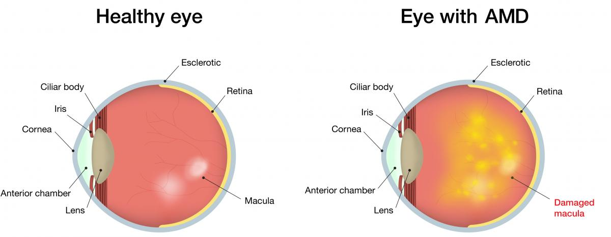 Macular degeneration armd centre for sight what are the signs of amd ccuart Choice Image