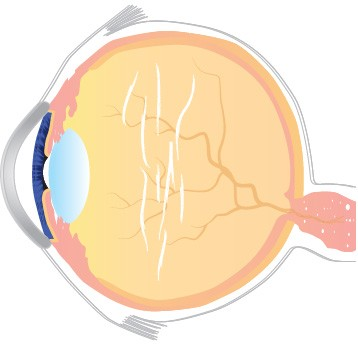 Eye Floaters Treatment | Vitreolysis | CFS