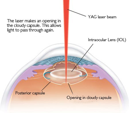 Yag Laser Capsulotomy Diagram