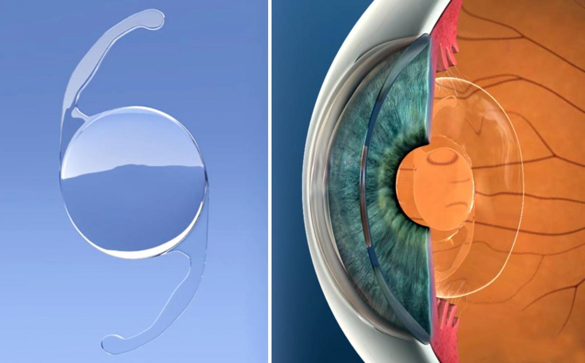 Monofocal Intraocular Lens at Centre for Sight