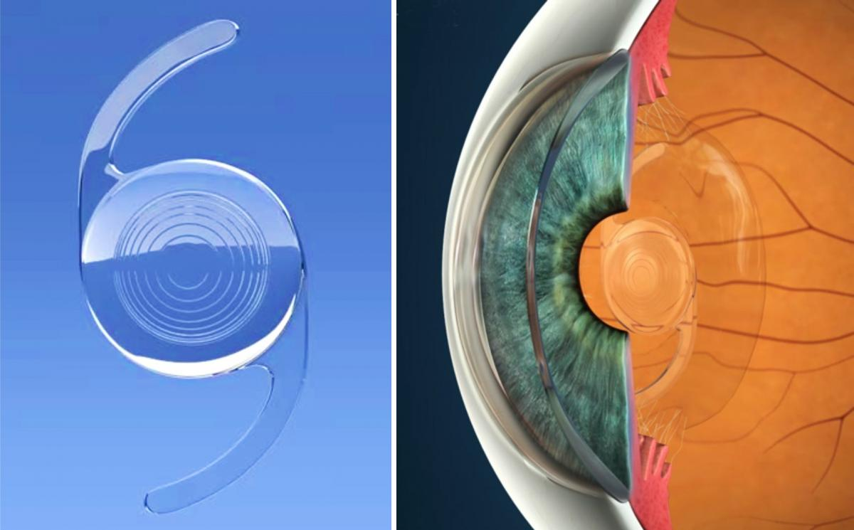 Multifocal Intraocular Lens at Centre for Sight