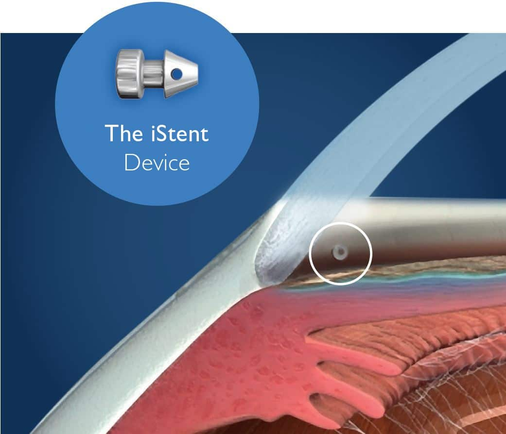 iStent device - Glaucoma treatment