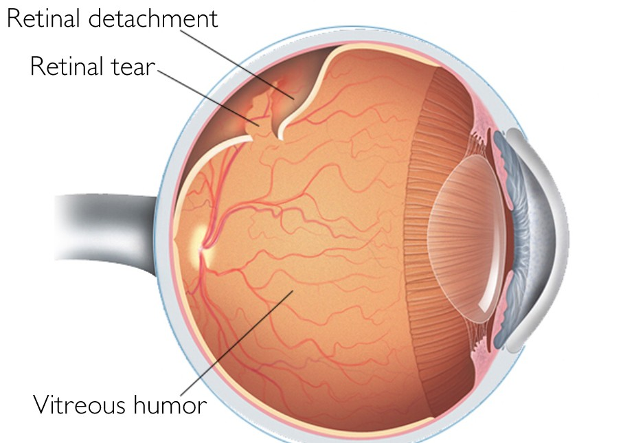 Retina and Vitreous Treatment at Centre for Sight