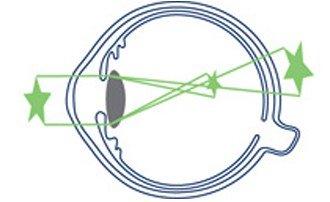 Astigmatism Eye Illustration